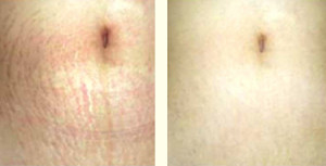Eclipse MicroPen - Stretch marks, before/after